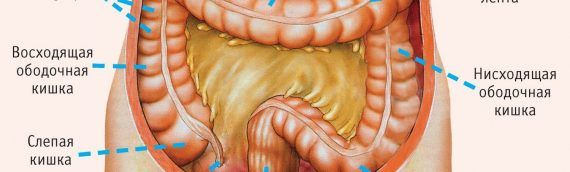 Рак ректосигмоидного отдела прямой кишки. Лечение рака ректосигмоидного соединения