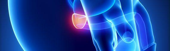 Аденома предстательной железы: чем она опасна и как проявляется?