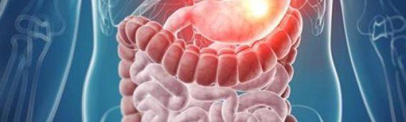 Лечение рака желудка на разных стадиях заболевания
