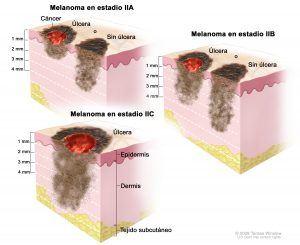 Так выглядит меланома на стадии A, B и C.