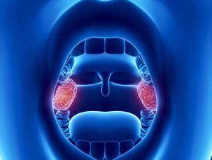 рак миндалин