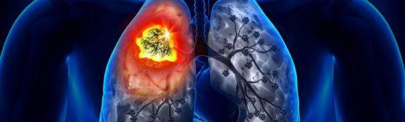 Первая стадия рака лёгких