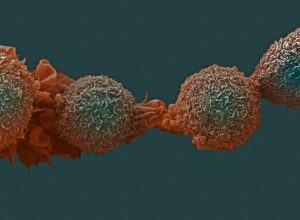 Модифицированные раковые клетки