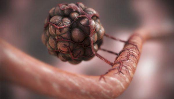 Процесс перехода опухоли в злокачественную
