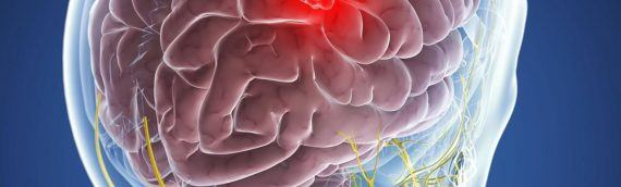 Опухоли головного мозга: злокачественные и доброкачественные – так ли велика разница?