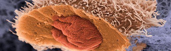 Что такое рак и как не допустить его развития: бич XXI века
