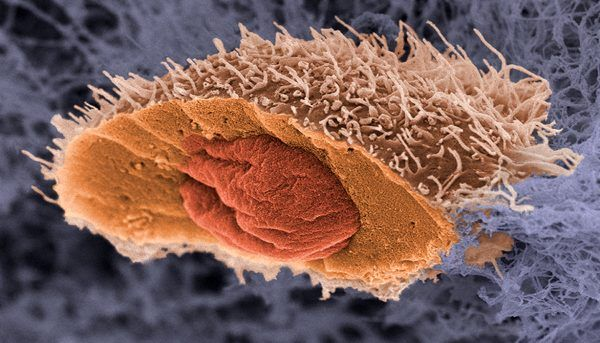 Злокачественная адренокарцинома