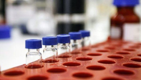 В Сколково разработали метод выявления редкого вида рака