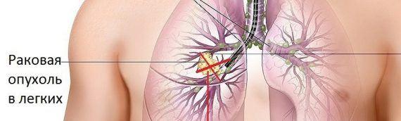 Как победить рак легких: мнение врача