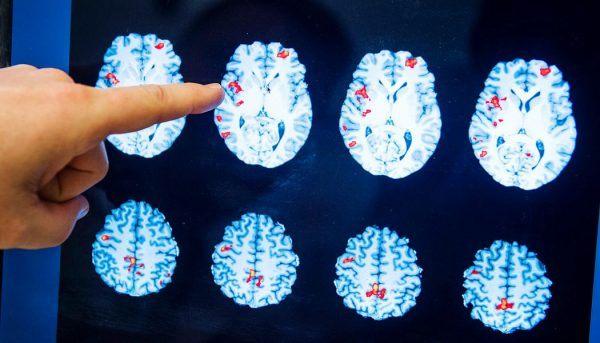 Новый препарат заставляет раковые клетки самоуничтожаться