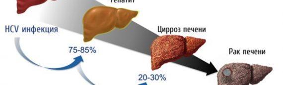 Российские исследователи научили гелиомицин лечить рак печени