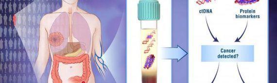 Создан анализ крови, выявляющий рак до появления симптомов