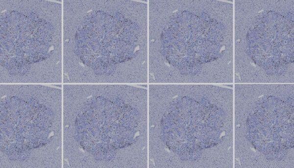 Эффективный вид иммунотерапии рака кишечника