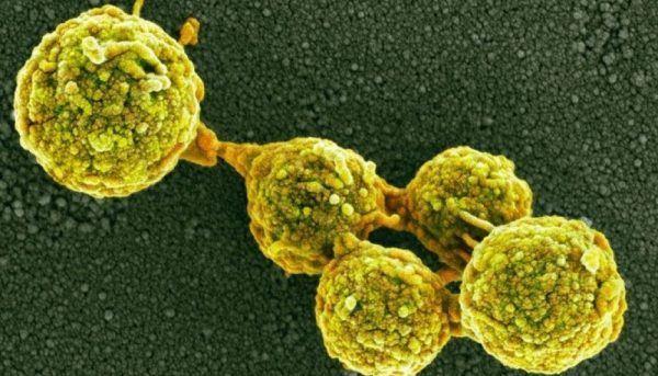 Причина рака - грибы