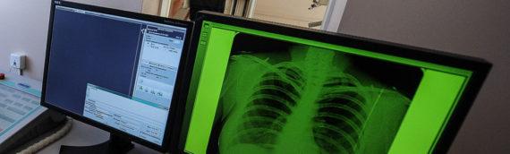 В России разрабатывают уникальный прибор, определяющий рак легких по выдоху